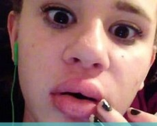 This Is What Happens When You Try To Get Lips Like Kylie Jenner's