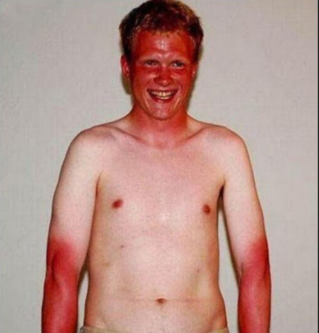 ££-Worst-And-Funniest-Sunburn-Ever (1)