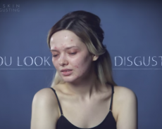 'You Look Disgusting': Woman Reveals Cruellest Comments In This Powerful Video