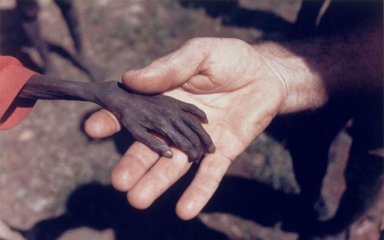 cool-powerful-photos-hand-hunger